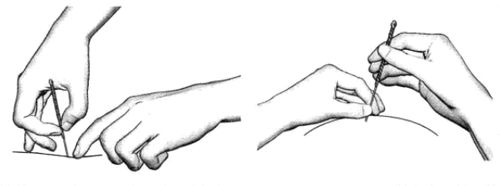 <a href=http://www.wujue.com target=_blank class=infotextkey>中医</a>针刺之毫针疗法